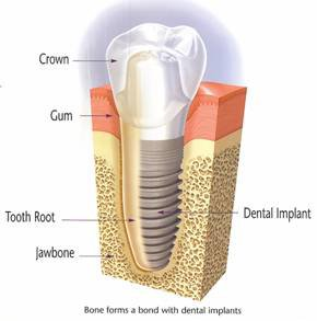Dental Implant Image Diaghram