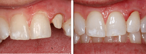 Dental Crowns Picture